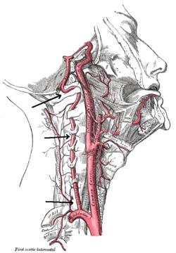 Vertebral artery dissection in evolution found during chiropractic examination.