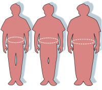 Physiotherapists demonstrate weight stigma