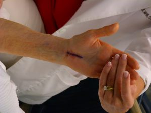 Manual Physical Therapy Versus Surgery for Carpal Tunnel Syndrome: A Randomized Parallel-Group Trial.