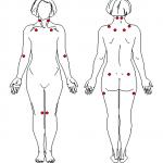 Fibromyalgia 1990 ACR Criteria