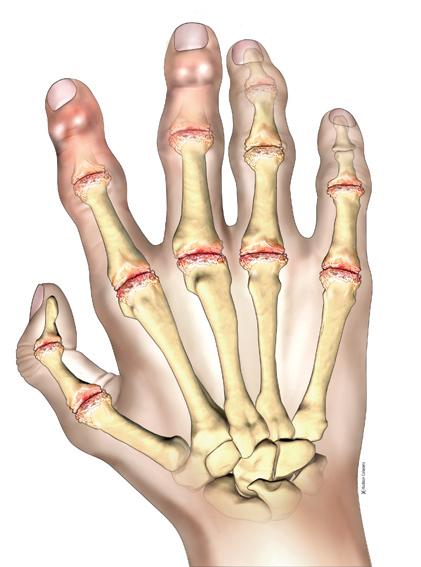 Prevalence and burden of osteoarthritis amongst older people in Ireland