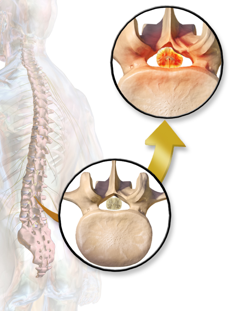 Nonoperative treatment for lumbar spinal stenosis with neurogenic claudication.