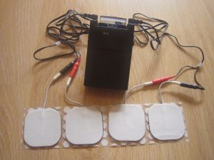Use of Transcutaneous Electrical Nerve Stimulation Device in Early Osteoarthritis of the Knee