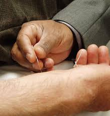 Physiologic effects of dry needling.