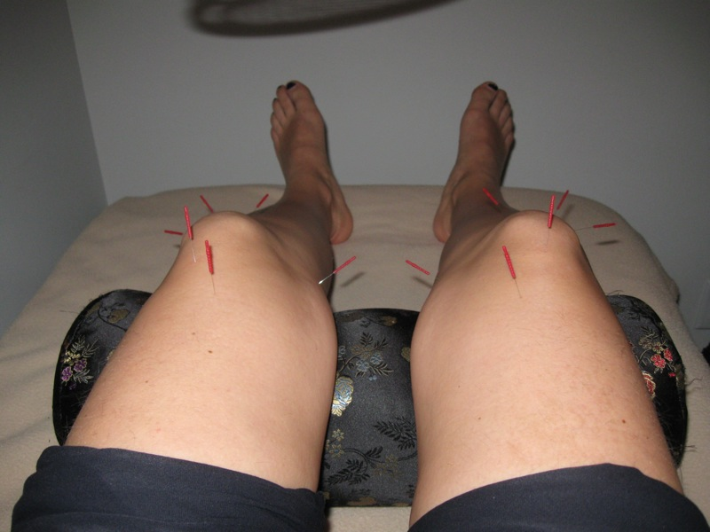 Integrating acupuncture with exercise-based physical therapy for knee osteoarthritis