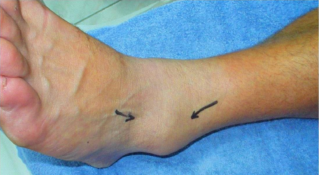 Dynamic Balance Deficits 6 Months Following First-Time Acute Lateral Ankle Sprain