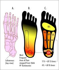The effect of additional ankle and midfoot mobilizations on plantar fasciitis