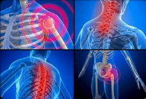 Resistance exercise improves muscle strength, health status and pain intensity in fibromyalgia