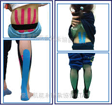 Effects of Kinesio(®) taping on skeletal muscle strength