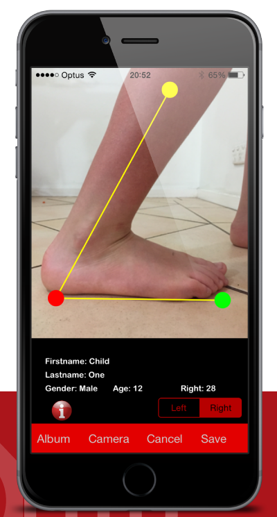 Save Time During Paedicatric assessment with the new Toes2Hip app