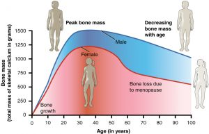 Osteoporosis in Individuals with Spinal Cord Injury
