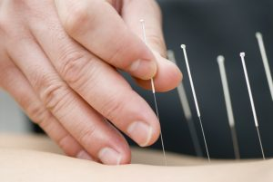 Contribution of Dry Needling to Individualized Physical Therapy Treatment of Shoulder Pain