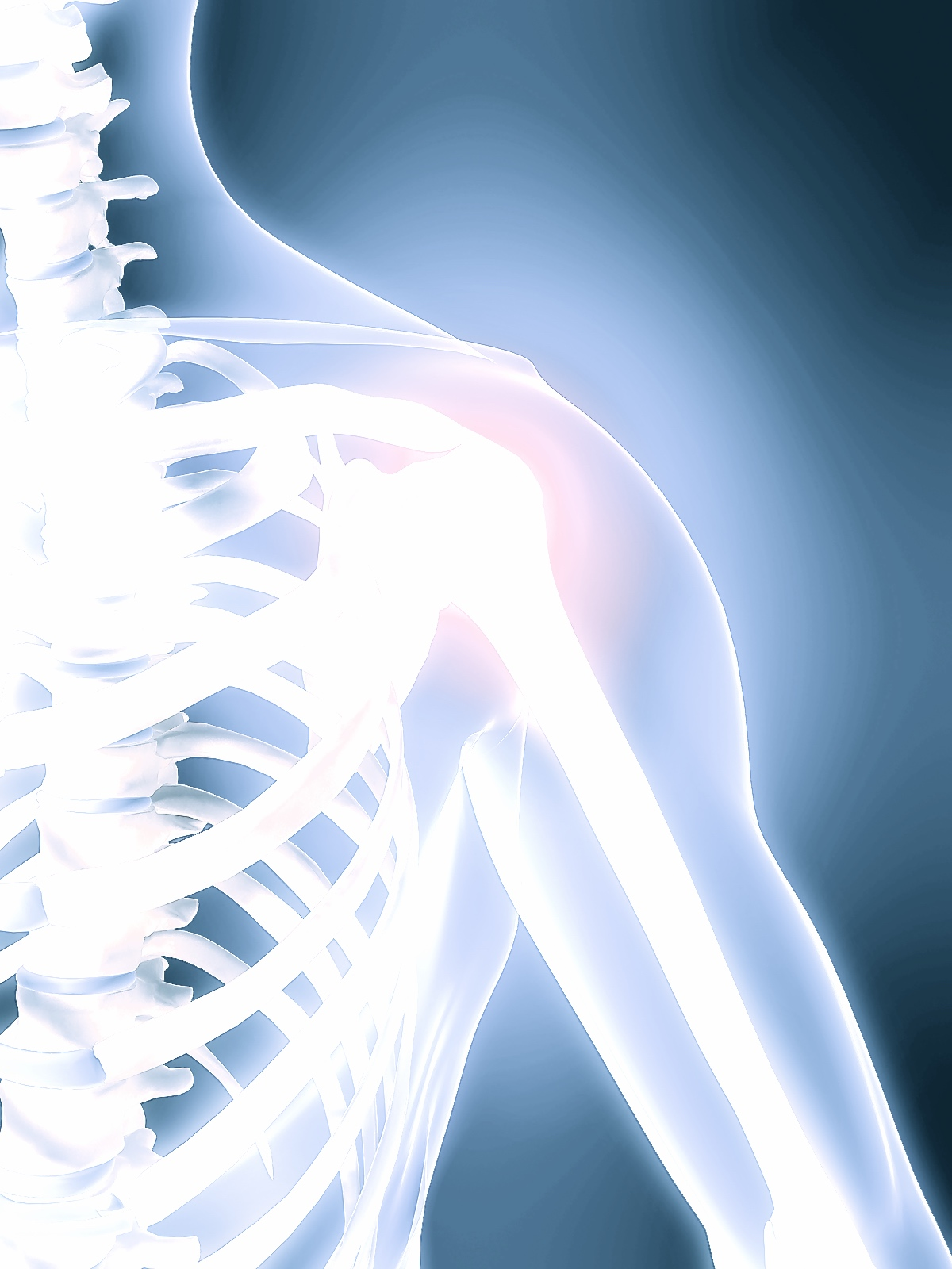 Risk factors which predispose first-time traumatic anterior shoulder dislocations to recurrent instability in adults