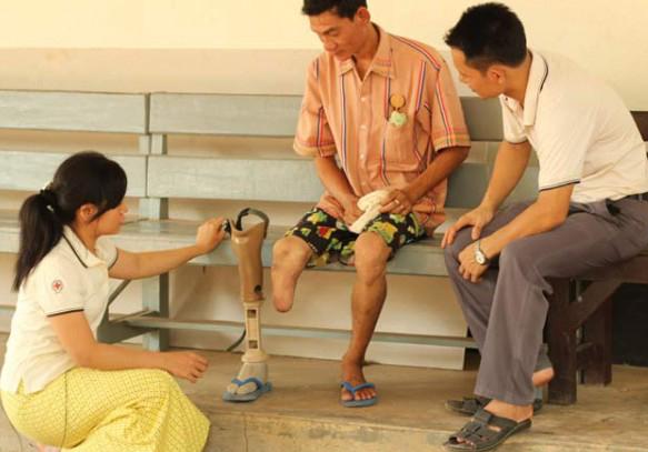 FREE 6 Week Course on Lower Limb Amputee Rehabilitation