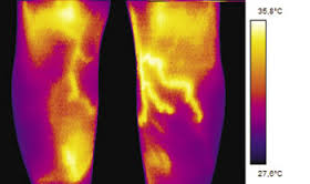 Infrared thermography is useful for ruling out fractures in paediatric emergencies