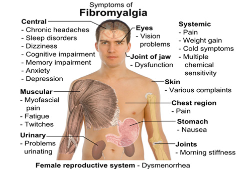 ICD-10 Brings Recognition of Fibromyalgia to Health Care