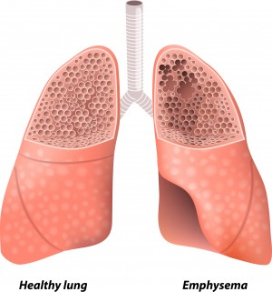 Inspiratory muscle training during rehabilitation in successfully weaned hypercapnic patients with COPD.