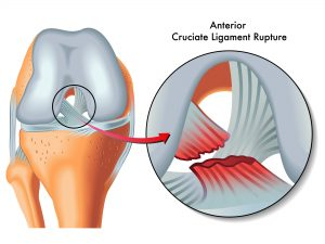 The effectiveness of pre-op exercise rehabilitation on outcomes of treatment following ACL injury a systematic review.