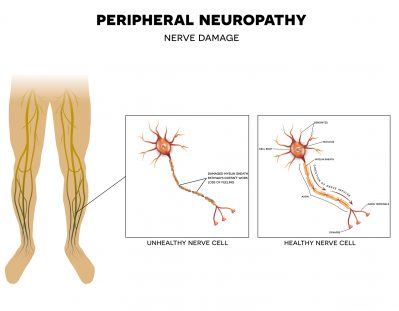 physiotherapy for diabetic peripheral neuropathy dpn Evaluation of static and dynamic balance in patients with diabetic peripheral polyneuropathy: original research article.