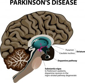 Virtual reality for rehabilitation in Parkinson's disease.