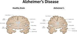 Paired Studies Comparing Clinical Profiles of Lewy Body Dementia with Alzheimer's and Parkinson's Diseases.