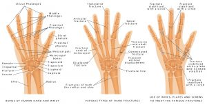 Mirror therapy for distal radial fractures: A pilot randomized controlled study.
