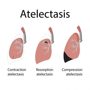 Analysis of the prevalence of atelectasis in patients undergoing bariatric surgery.