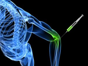 Economic evaluation favours physiotherapy not steroid injection as primary treatment for chronic lateral epicondylalgia