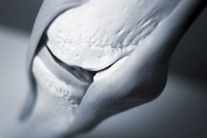 he Ottawa panel clinical practice guidelines for the management of knee osteoarthritis. Part two