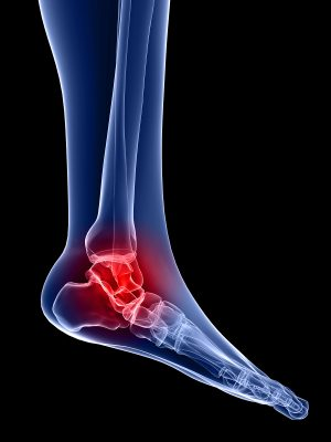 Novel treatment of lateral ankle sprains using the Mulligan concept: an exploratory case series analysis