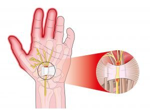 Efficacy of Manual Therapy Including Neurodynamic Techniques for the Treatment of Carpal Tunnel Syndrome: