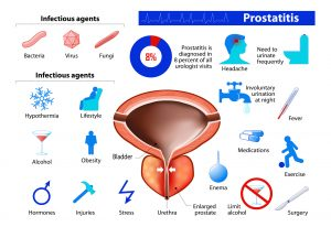 Assessment of Physical Therapy Strategies for Recovery of Urinary Continence after Prostatectomy