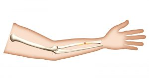 Supervised physical therapy vs home exercise program for patients with distal radius fracture