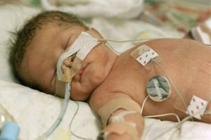 Ventilatory Efficiency in Children and Adolescents Born Extremely Preterm.