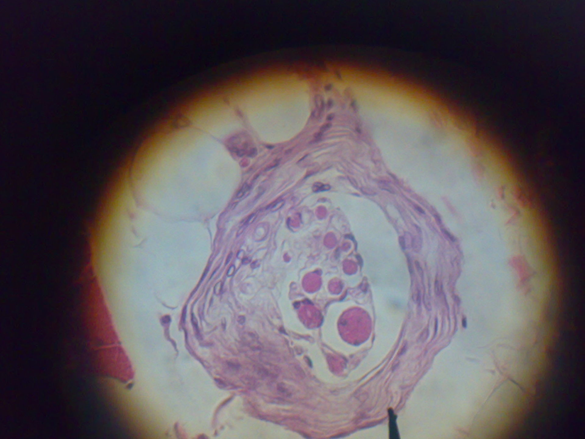 Muscle Spindle under microscope