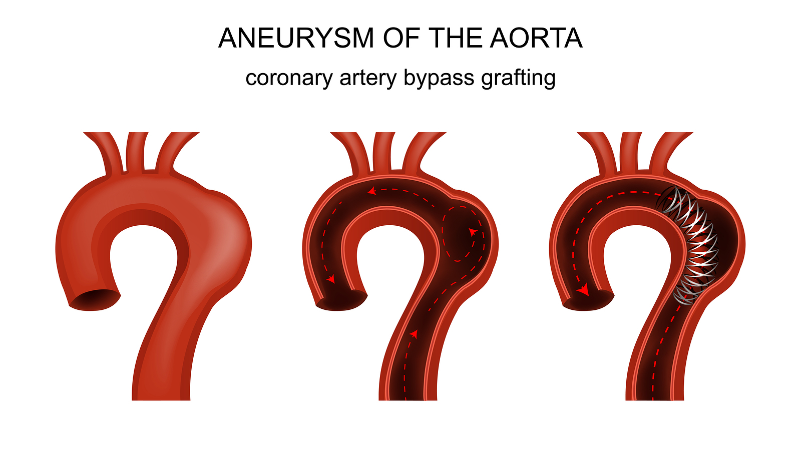 coronary artery bypass graft pulmonary complications nursing essay Comparison of recovery patterns for patients undergoing coronary artery bypass grafting and minimally invasive direct coronary artery bypass in the early discharge period.