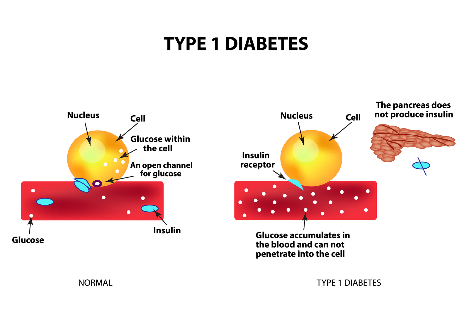 Exercise for type 1 diabetes mellitus management: General considerations and new directions.