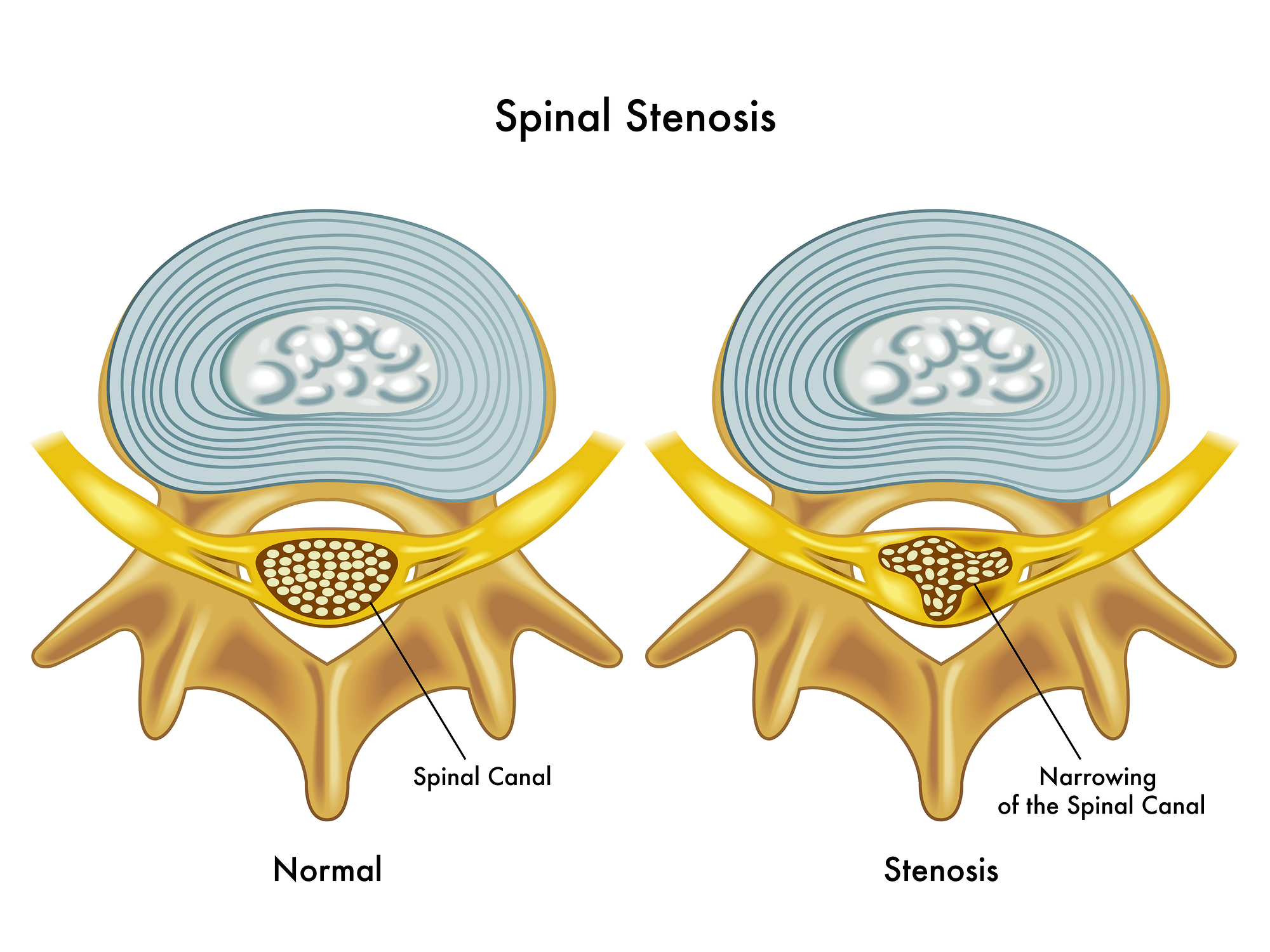 A comparative study of 3 treatments in patients with lumbar stenosis. The LAP study